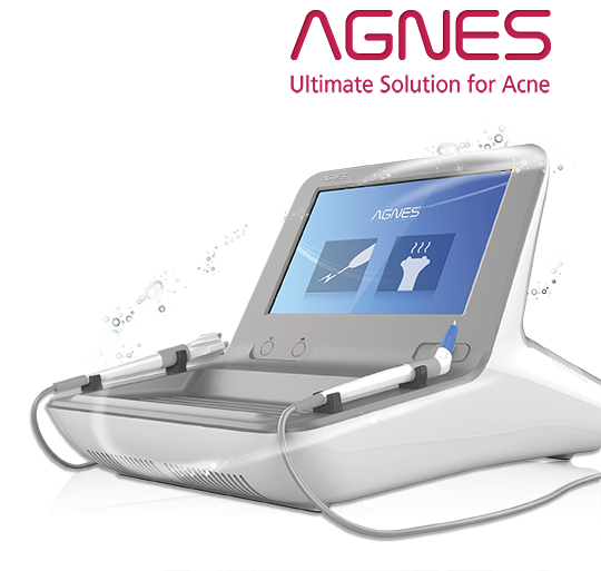 AGNES The Ultimate Solution for Acne