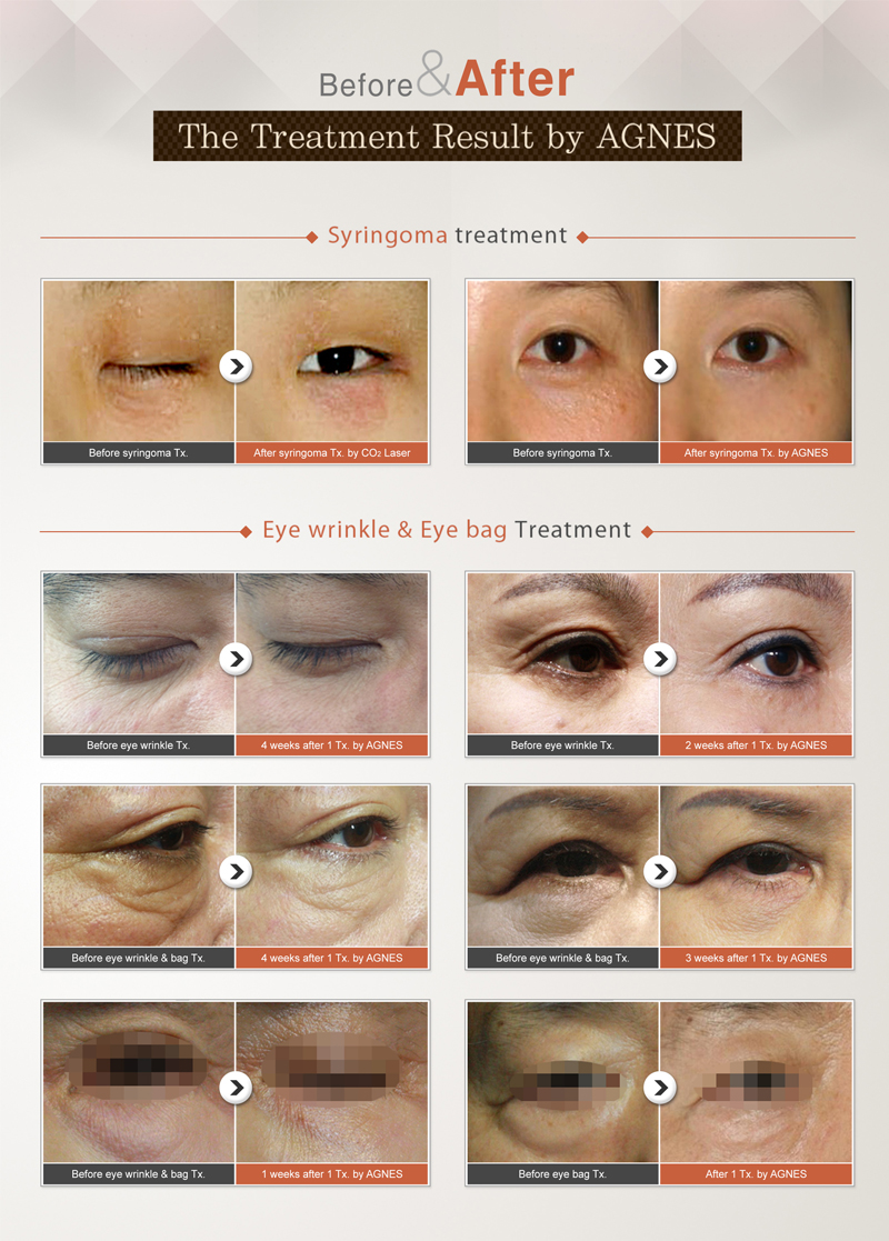 The Treatment Result by AGNES